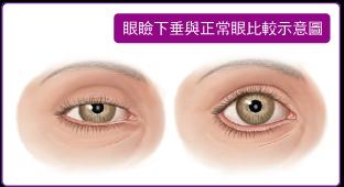 眼臉下垂與正常眼比較圖.png