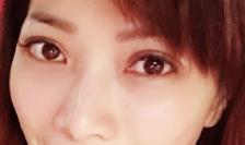 人氣網紅雙眼皮術後照顧_2.png