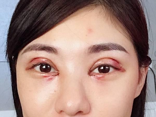 雙眼皮手術術後第二天.jpg