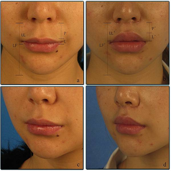 upper lip lift with a T shaped resection of the orbicularis oris muscle for asain perioral rejuvenation3.jpg