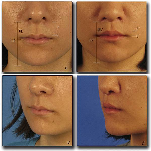 upper lip lift with a T shaped resection of the orbicularis oris muscle for asain perioral rejuvenation4.jpg