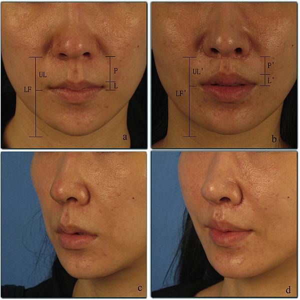 upper lip lift with a T shaped resection of the orbicularis oris muscle for asain perioral rejuvenation5.jpg