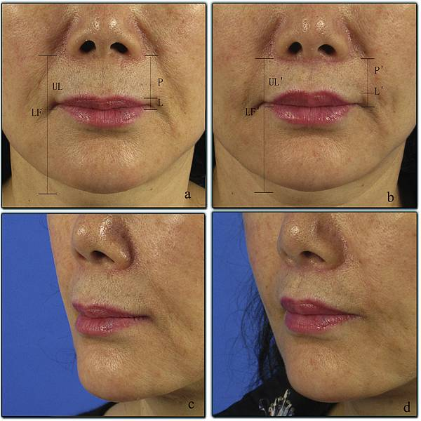 upper lip lift with a T shaped resection of the orbicularis oris muscle for asain perioral rejuvenation6.jpg