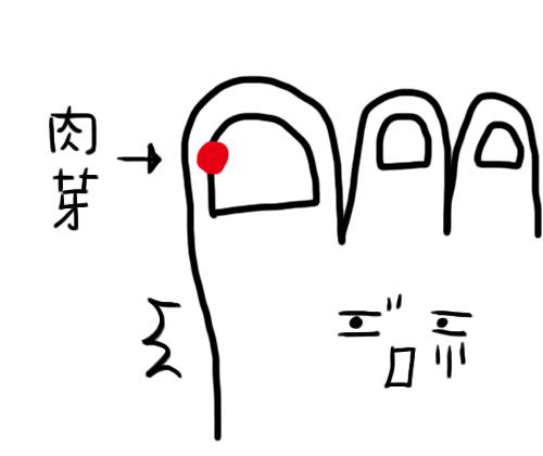 肉芽.jpg