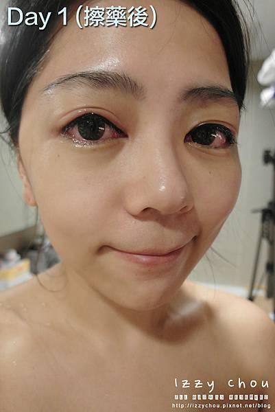 紋繡眼線 第一天擦藥