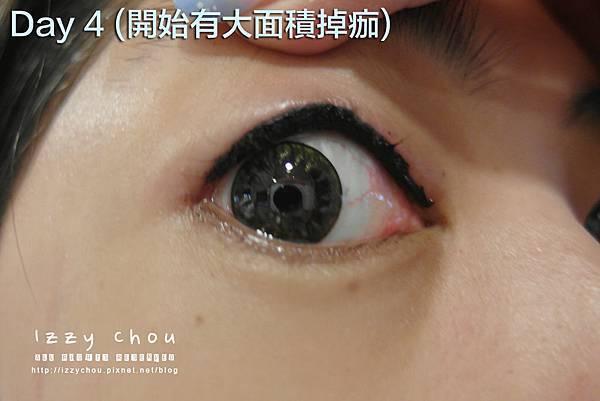 紋繡眼線 復原期 掉痂
