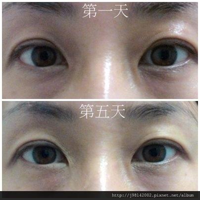 眼3.jpg