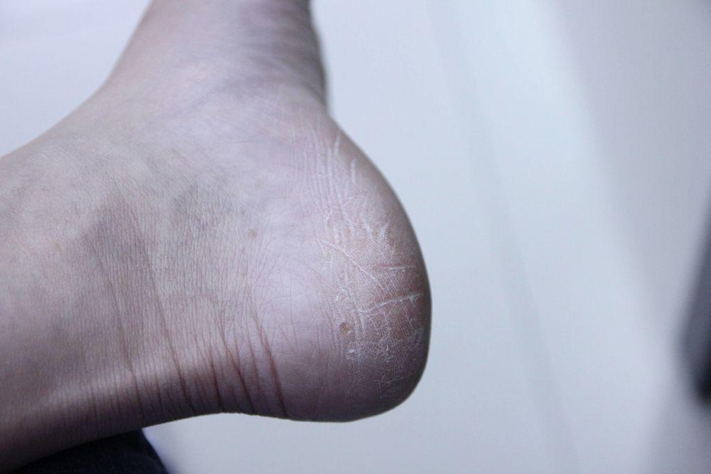 Tal蒂愛麗修護足膜8-2.JPG