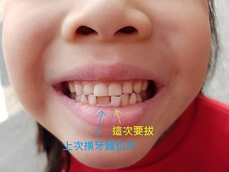 1070214換牙2