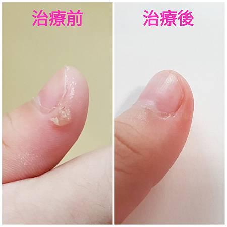手指病毒疣1