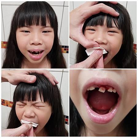 20190322換牙2