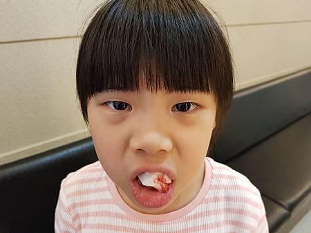 20190322換牙4