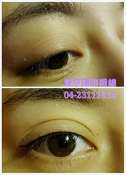 婕亨台中專業隱形眼線