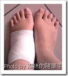 懷孕30週扭傷的左腳#2