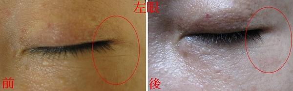 術後左眼 比對.jpg