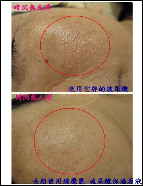 玻尿酸照片1-3.jpg