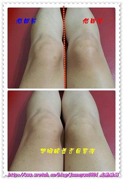 膝蓋去角質前後對照