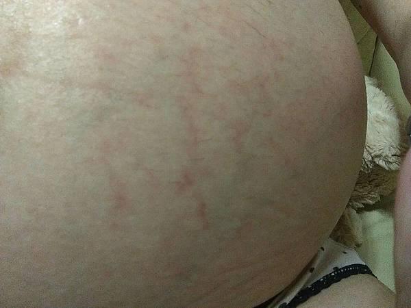 35W妊娠紋出現了.jpg