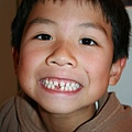 I lost my tooth last night!