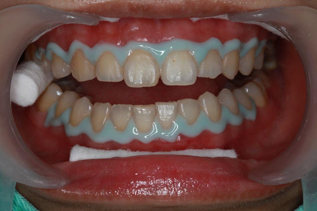 牙齦保護劑
