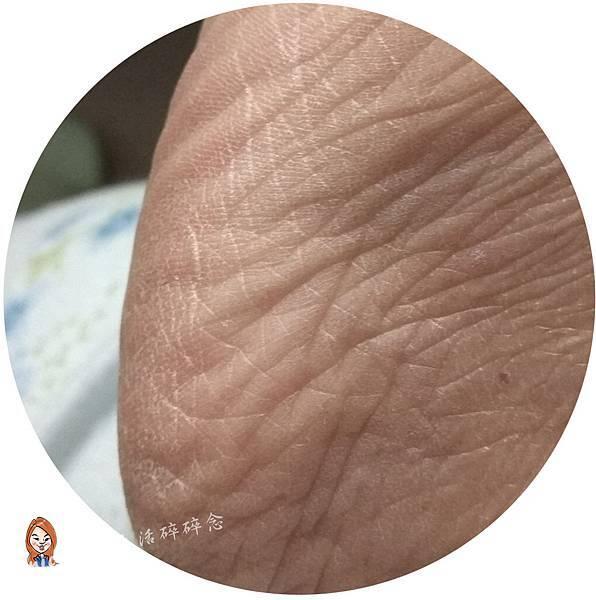 20180323EN%5CR燕窩複方滋養液_使用前腳底.jpg