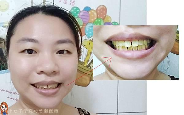 iENJOY居家牙齒美白-2.jpg