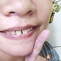 iENJOY居家牙齒美白-7.jpg