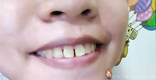 iENJOY居家牙齒美白-5.jpg