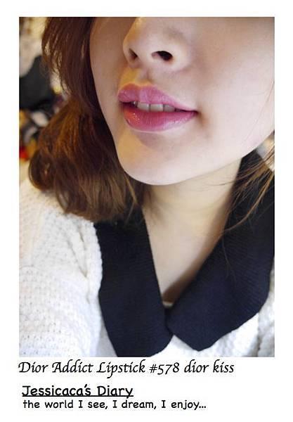 578 lip