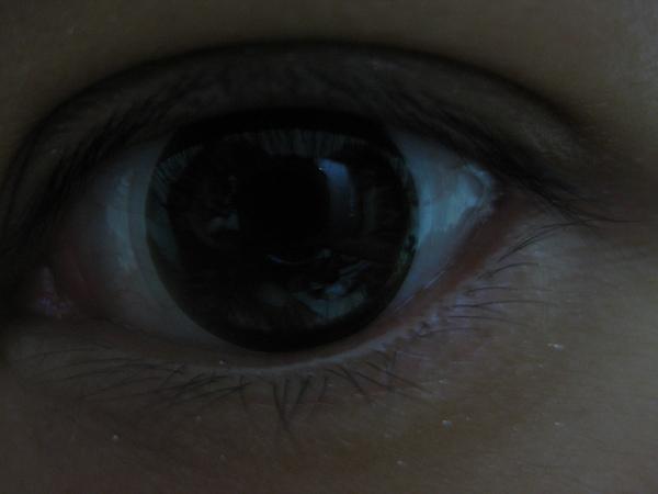 左眼.JPG