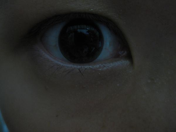 右眼.JPG