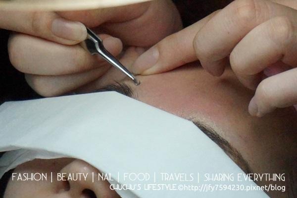 痘痘,青春痘, 粉餅雷射,粉刺,毛孔粗大,縮小毛孔,光纖粉餅雷射,膚色暗沉,痘痘消除法,美麗晶華