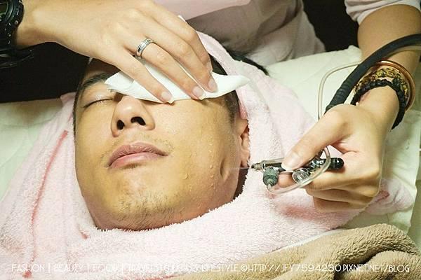 毛孔粗大,縮小毛孔,肉毒桿菌,瘦臉,除毛,痘痘,粉刺,收縮毛孔,雷射除毛,淨膚雷射