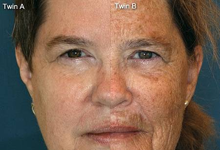 case-medical_study_photo_of_twins_65_closeup