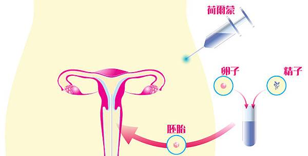 ivf_diagram_full_chi
