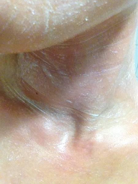 脖子.JPG