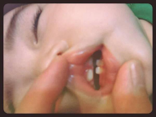 2012-0706八個月5顆牙