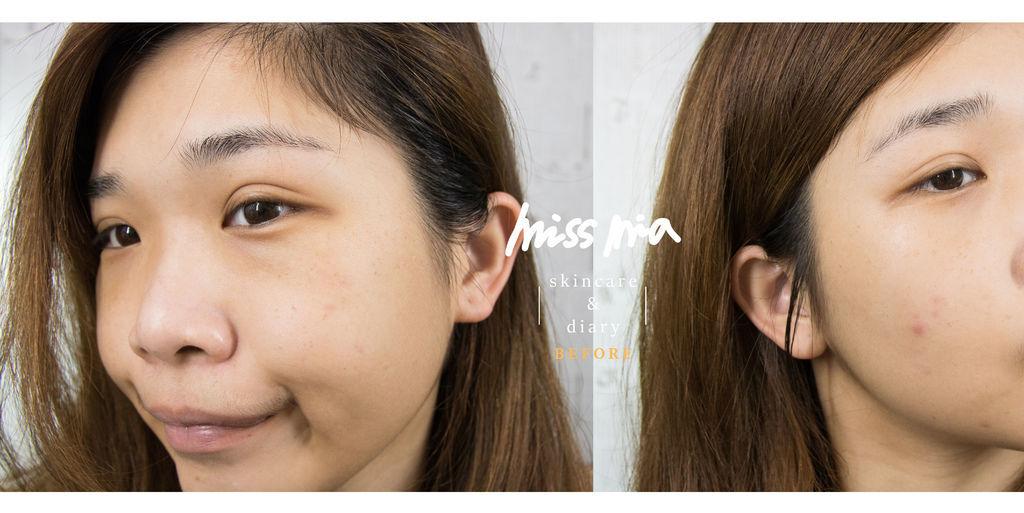 before-1.jpg