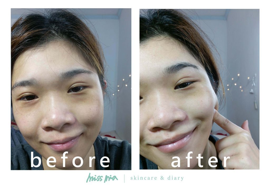 03-before-after.jpg