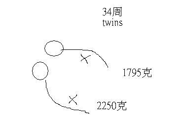 34周雙寶妹.JPG