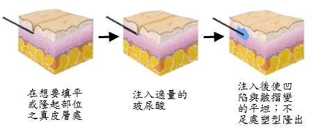 玻尿酸原理圖