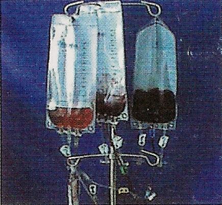 洗血血袋圖