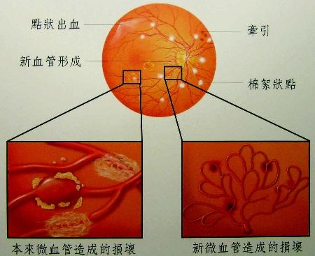 洗血臨床圖4