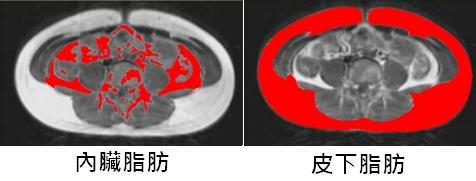 核磁共振內臟脂肪皮下脂肪圖