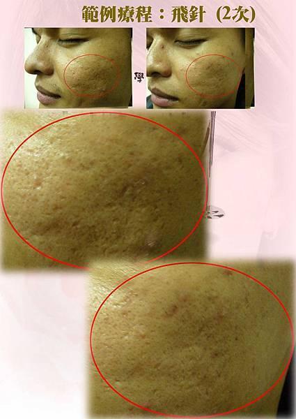 飛針術前術後圖2