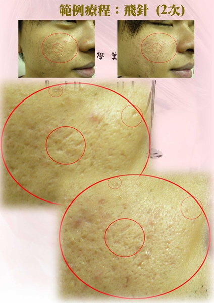 飛針術前術後圖3