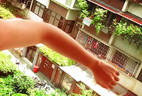 颱風天被曬傷