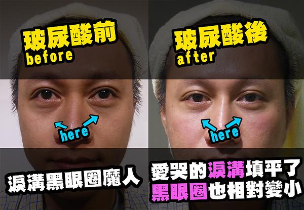 20130926  百萬人氣部落客-傳播弟,抗老大作戰 !-5