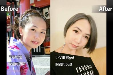 部落客蜜豆莎-埋線拉提改善臉皮下垂與嘴邊肉 (忠孝淨妍整所案例)