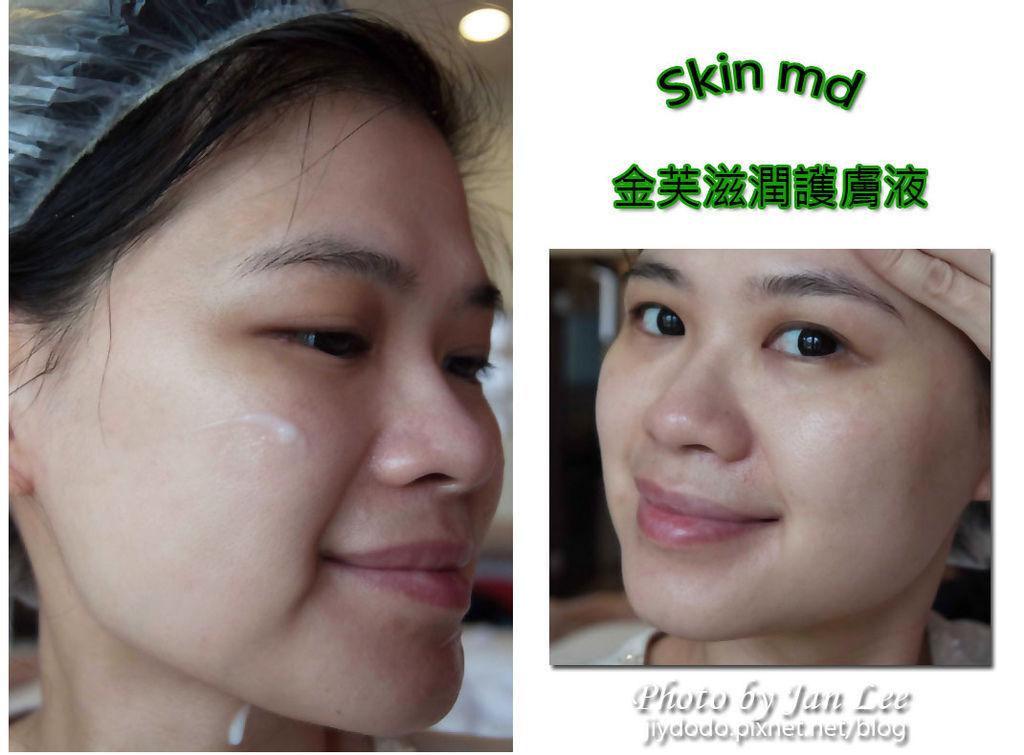 skin md-991a拷貝